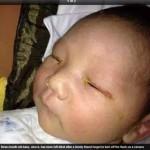 Médicos esclarecem: é impossível que flash tenha cegado bebê chinês