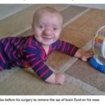 "Cérebro de bebê cresce dentro do nariz e mãe o chama de ""Pinóquio da vida real"""