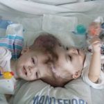 Gêmeos grudados pela cabeça são separados após cirurgia delicada nos EUA