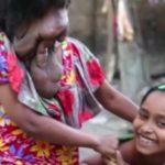 DESÍGNIO DE DEUS : Mulher sem rosto diz não ter amigos, só a familia