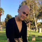 Jovem com alopecia compartilha jornada para aceitar condição e inspira na web