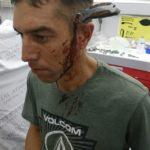 VÍTIMA DE ATAQUE, CICLISTA PEDALA ATÉ O HOSPITAL COM FACA CRAVADA NA CABEÇA