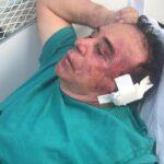 Polícia investiga se crime contra candidato Arimateia teve motivação política